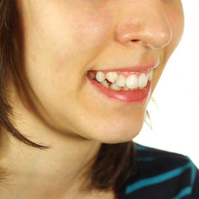 Skæve tænder